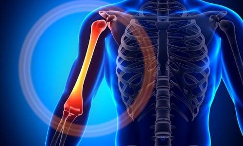 Проблема болей в костях