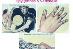 Схема бруцеллеза у человека