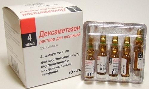 Дексаметазон назначают для устранения сильной боли, отека корешка нерва