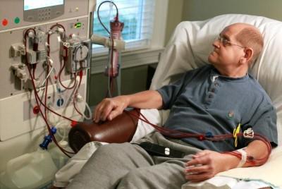 Гемодиализ: сколько живут при диализе, последствия лечения