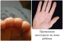 Проявления дисгидроза на коже