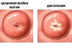 Дисплазия - одна из причин короткой шейки матки