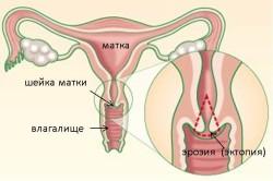 Эрозия как причина дисплазии шейки матки