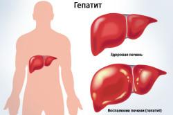 Гепатит - причина боли в животе