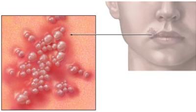 инфекция при беременности