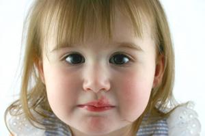 вирус герпеса у детей