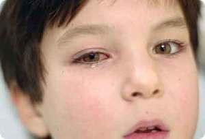 болезнь глаз ребенка