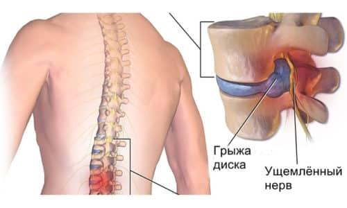 Грыжи межпозвоночных дисков могут возникать в любом отделе позвоночного столба: шейном, грудном, поясничном