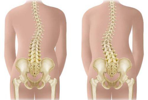 Правосторонний грудопоясничный сколиоз 2 степени лечение -