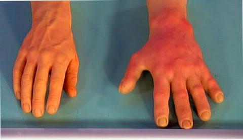 здоровая и пороженная холодовой аллергией кожа рук