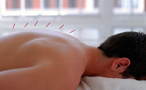 Иглоукалывание при грыже позвоночника как эффективный метод терапии