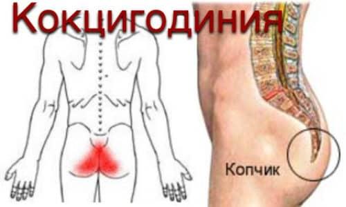 Обычно боль в копчиковой области связана с кокцигодинией