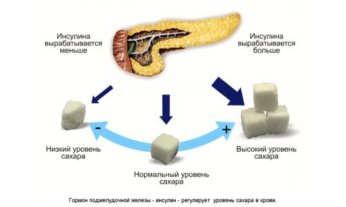 Совокупность панкреатита и сахарного диабета встречается довольно часто. Связано это с тем, что хроническое или острое воспаление разрушает β-клетки и приводит к инсулиновой недостаточности