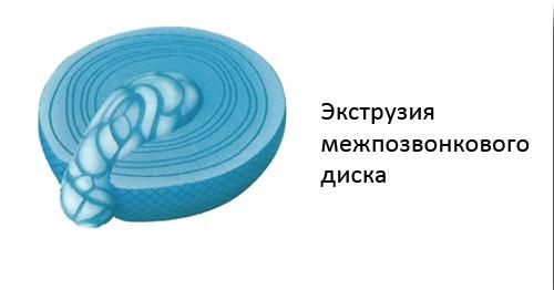 Дорзальная экструзия диска что это такое