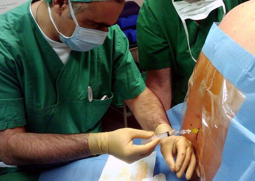 Виды блокад, применяемых для лечения межпозвоночной грыжи