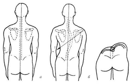 Как определить (выявить) сколиоз, метод диагностики по Чаклину и Коббу