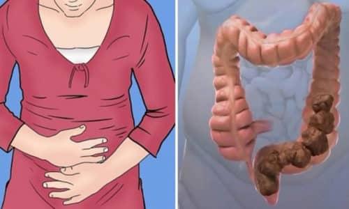 Ущемление грыжи, расположенной в пупочной области, при отсутствии оказания медицинской помощи становится причиной того, что развивается кишечная непроходимость