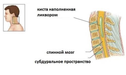 Схема кисты позвоночника