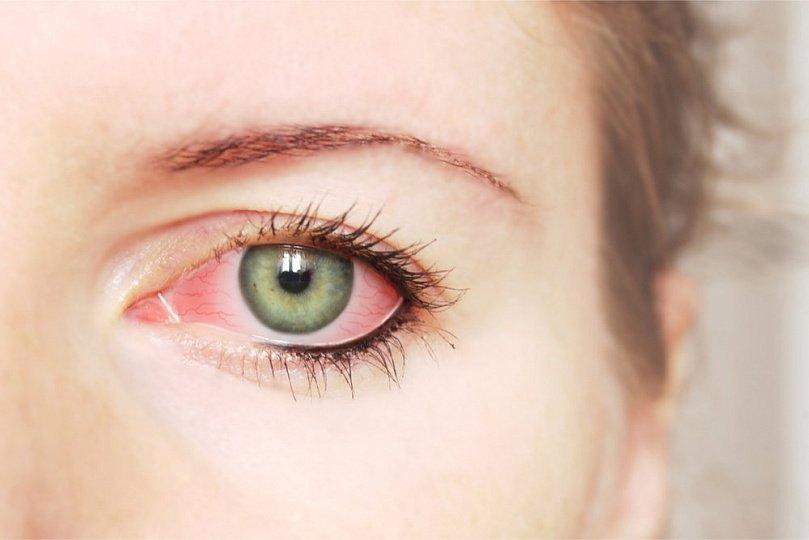 Хронический аллергический конъюктивит