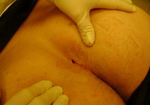 Подробнее о симптомах и причинах копчиковой грыжи