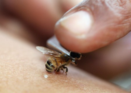 лечение остеохондроза пчелами