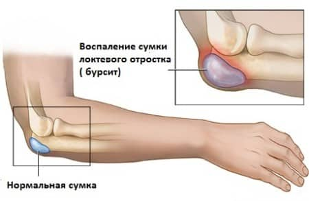 Анатомические особенности локтевого сустава