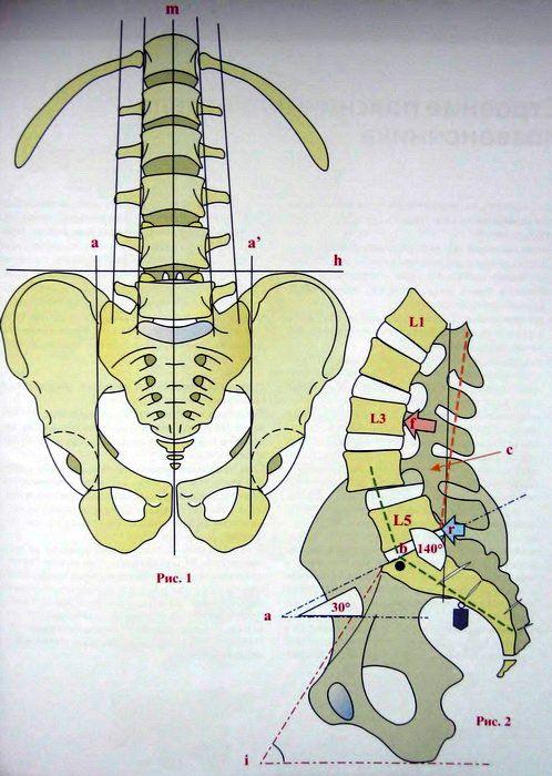 Анатомические особенности поясничного лордоза