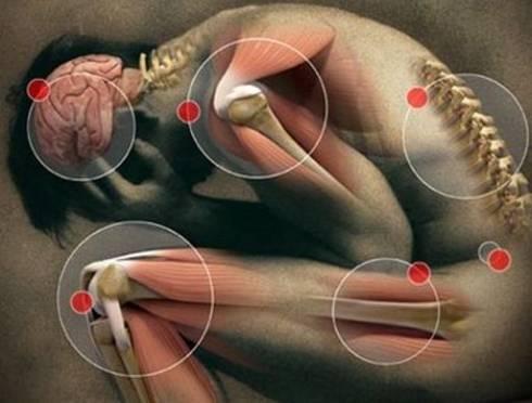 Болезненность и спазм мышц периодически возникают у всех людей на планете