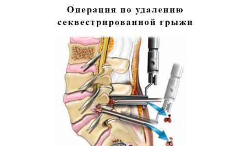 Операция по удалению секвестрированной грыжи позволяет избавиться от болевой симптоматики и улучшить качество жизни