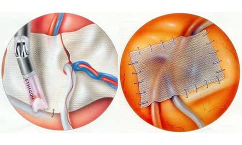 Врач выбирает необходимый способ пластики - натяжной (использование собственных тканей пациента) и ненатяжной (применение синтетических материалов)