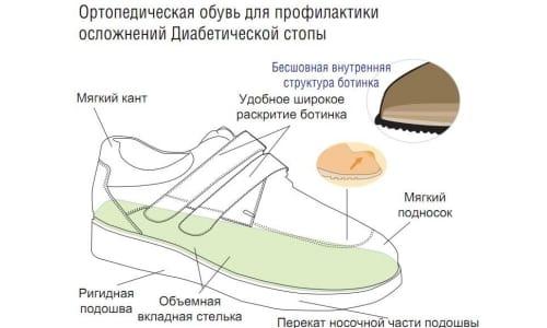 """Ортопедическая обувь """"Ортек"""" для лечения диабетической стопы"""