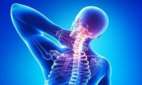 О вторичной головной боли