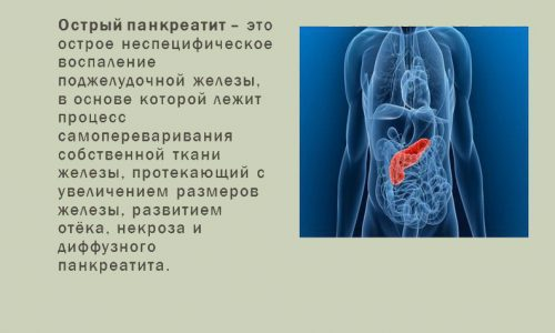 Перед началом лечения необходимо выяснить причину острого панкреатита