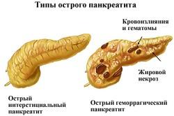 Схема острого панкреатита
