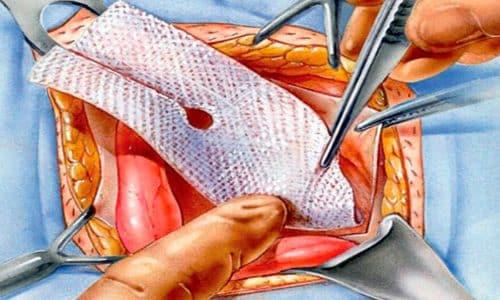 При грыже на животе хирург устанавливает органы на присущие им места и укрепляет брюшную стенку с помощью пропиленовой сетки