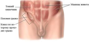 Подготовка к операции паховой грыжи у мужчин