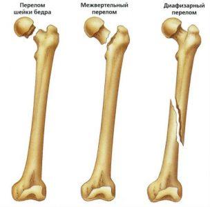 Классификация возможных повреждений