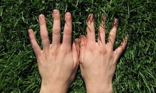 Проблема гипергидроза рук