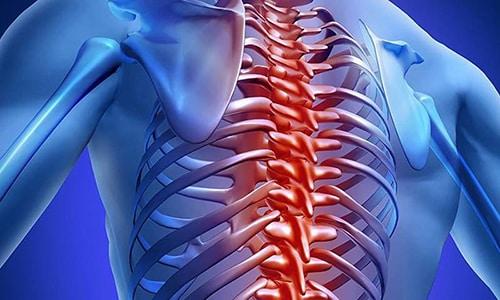 К осложнениям грыжи позвоночного отдела относятся: зажатие хвоста, цервикалгия, мигрени, цервикобрахиалгия