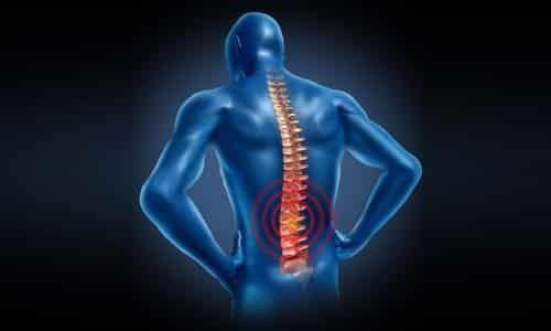 Проблема болей в спине