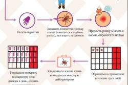 Действия при укусе энцефалитного клеща