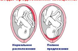 Предлежание плаценты - причина кровянистых выделений при беременности
