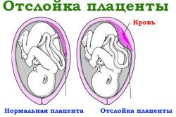 Отслойка плаценты - причина болей внизу живота