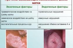 Лейкоплакия - причина развития рака