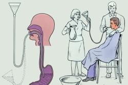 Схема промывания желудка при отравлении