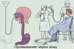 Принцип промывания желудка через зонд