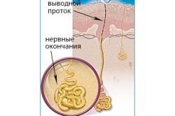 Образование пота при гипергидрозе