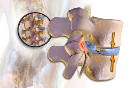 Дискогенная радикулопатия пояснично-крестцового отдела позвоночника (L5-S1)