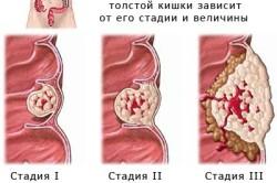 Рак матки - одна из причин белых выделений