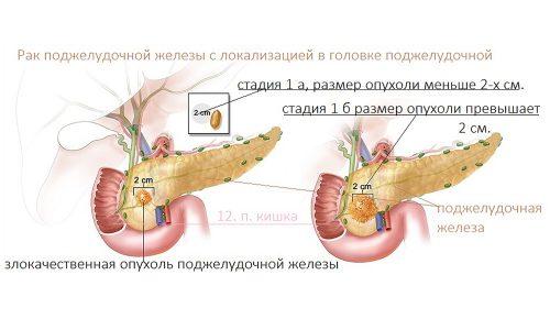 Пик заболеваемости раком головки поджелудочной железы наблюдается у людей в возрасте 70 лет, при этом мужчины болеют чаще женщин